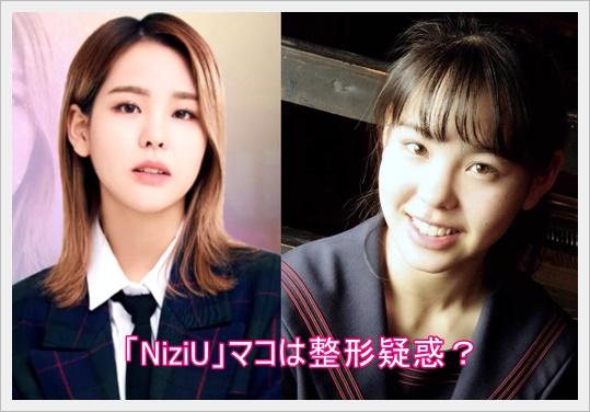 [NiziU]マコ(山口真子)の鼻は整形疑惑?歯の矯正も?すっぴんも調査2