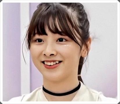 [NiziU]ミイヒは痩せすぎ?原因は歯の矯正やストレス?画像を比較!2