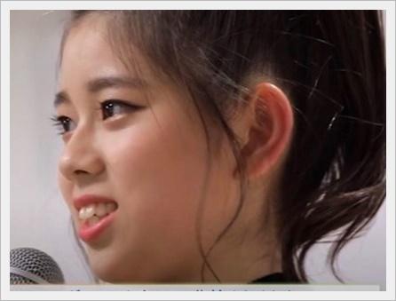 NiziUリク(大江梨久)が可愛くない原因は歯や性格?矯正や整形は?3