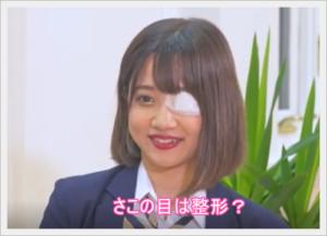 恋ステ/さこ(有路紗子)の目は整形で眼帯?イメチェンして清楚系?4